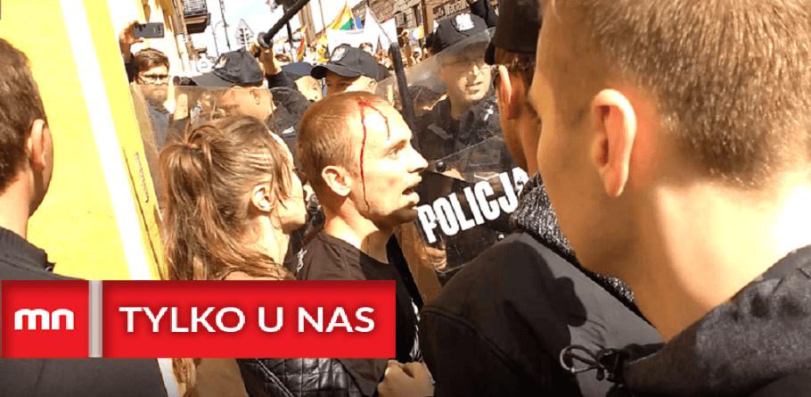 [NASZ WYWIAD] Pomykała: Funkcjonariusze przekroczyli swoje uprawnienia i narazili życie i zdrowie członków legalnej manifestacji
