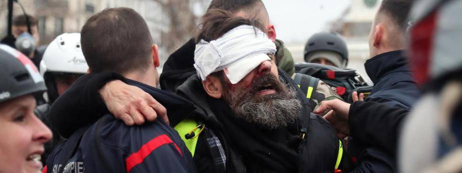 """""""Stracę oko"""". Lider żółtych kamizelek dostał pociskiem w oko. Wszystko nagrał swoim telefonem [WIDEO]"""